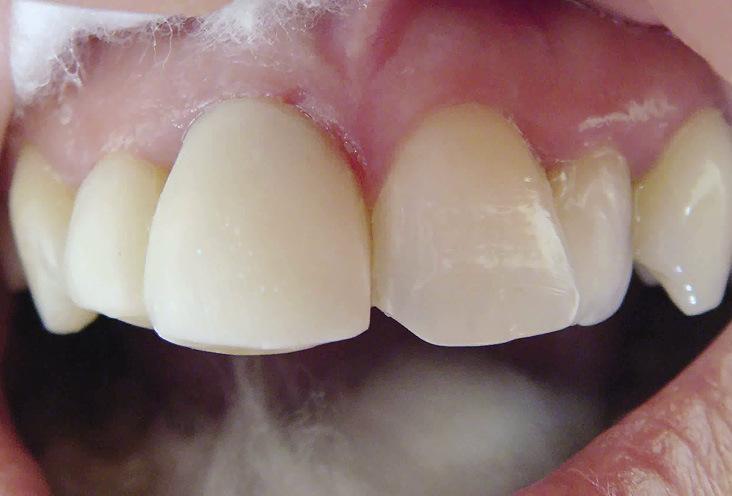 Рис. 10. Депульпированный и измененный в цвете центральный правый резец покрыт виниром, маскирующим темный оттенок зуба. Винир отличается чрезмерной толщиной и шириной, выделяя резец из зубного ряда.