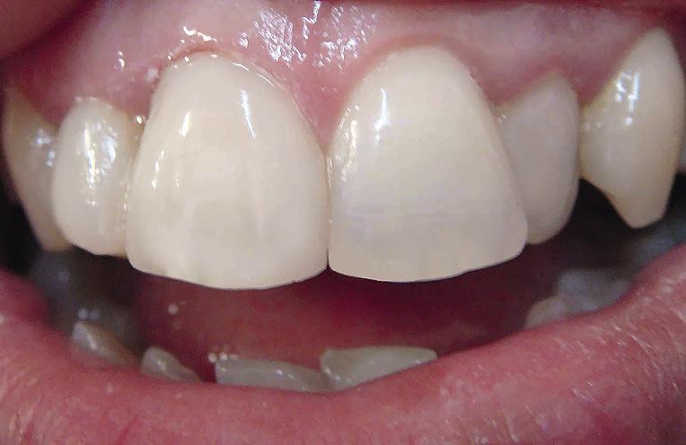 Рис. 12. Оттенки цвета 11 зуба восстановились, зуб посветлел. Винир заменен на реставрацию, соответствующую по цвету и форме симметричному зубу.