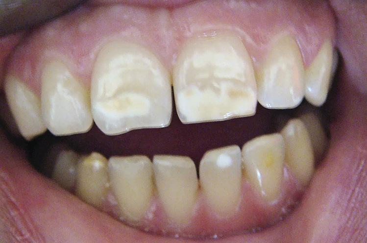 Рис. 13. Зубы верхней и нижней челюстей темные, на вестибулярной поверхности пятна гипоплазии белого и коричневого цветов.