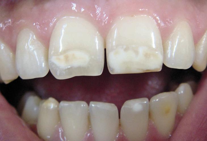 Рис. 15. После проведенного домашнего отбеливания зубы посветлели, но пигментированные пятна остались.