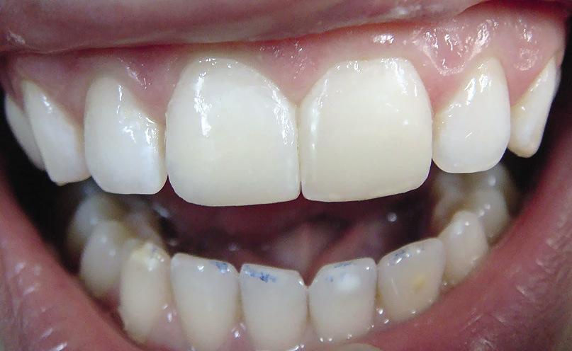 Рис. 18. Изготовленные реставрации не отличаются по цвету от естественных зубов.