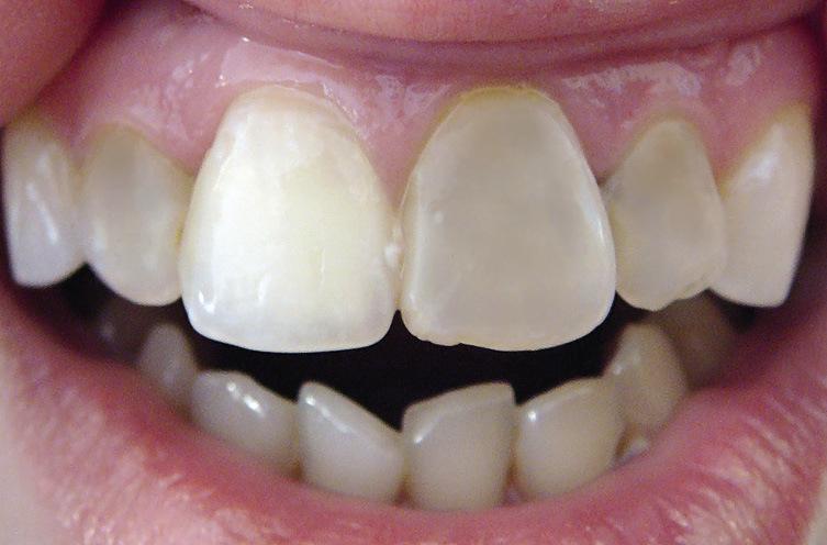 Рис. 19. 12, 21 и 22 зубы депульпированы, изменены в цвете, покрыты винирами.