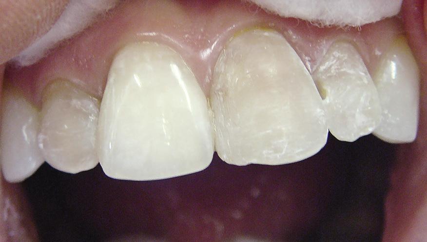 Рис. 20. Удалены старые реставрации, зубы препарированы на толщину винира.
