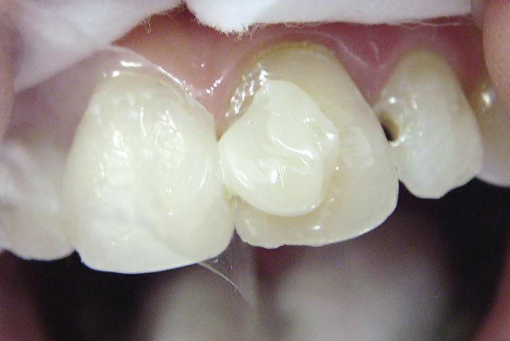 Рис. 21. На вестибулярную поверхность реставрируемых зубов нанесен опак.