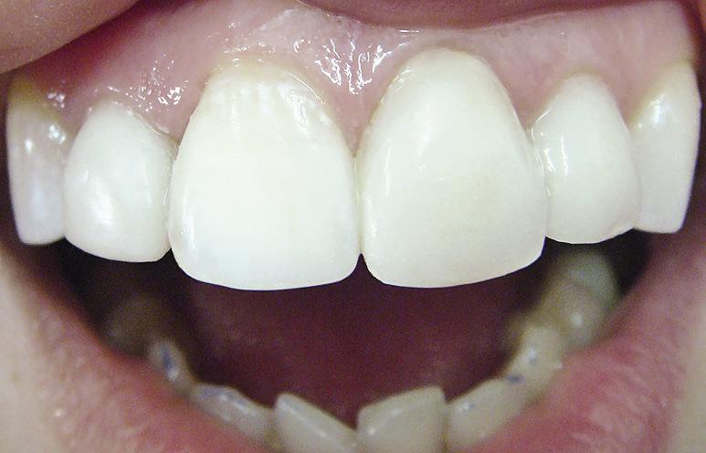 Рис. 22. На 12, 21 и 22 зубы изготовлены цветонейтрализующие виниры. Цвет и форма реставрированных резцов не отличаются от таковых симметричных зубов.
