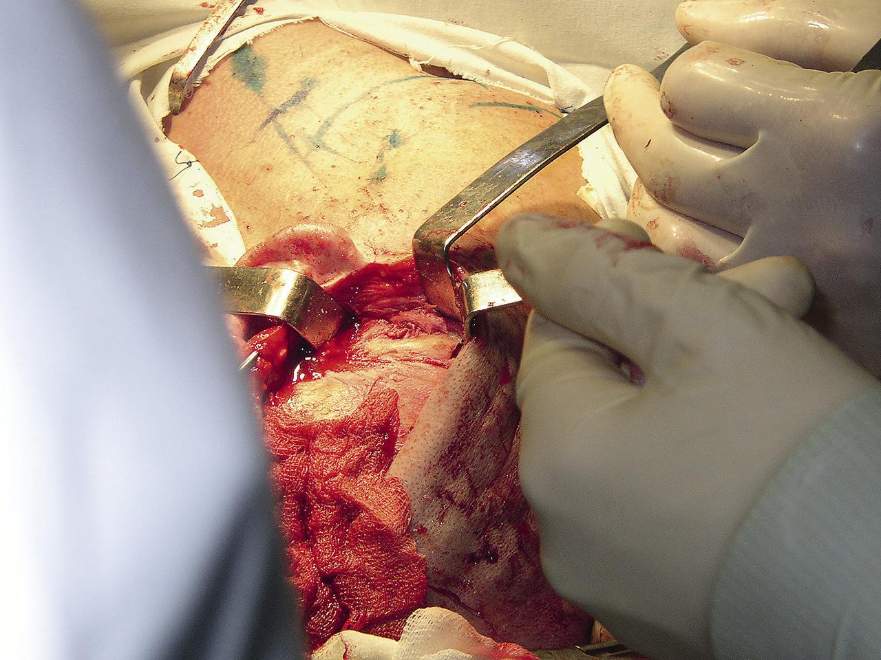 Рис. 4. Операционная рана, венечный доступ, остеотомия скуловой дуги: 1 — скуловая дуга, 2 — области остеотомий.