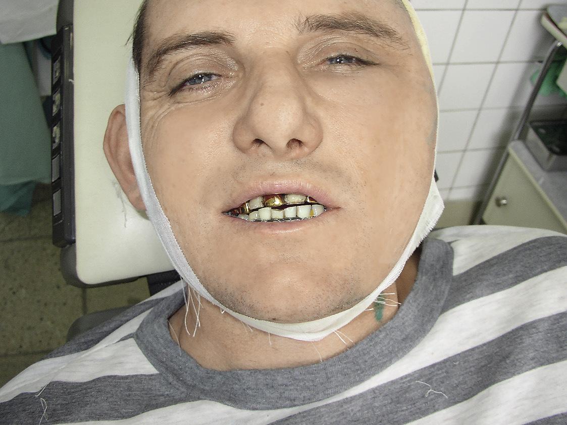 Рис. 7. Состояние физиологического покоя нижней челюсти на первый день после операции. Смыкание зубов в физиологическом прикусе с восстановлением средней линии.