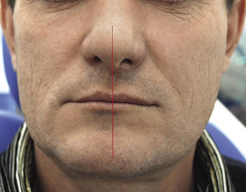 Рис.8. Симметрия лица, состояние физиологического покоя, 9 лет после операции.
