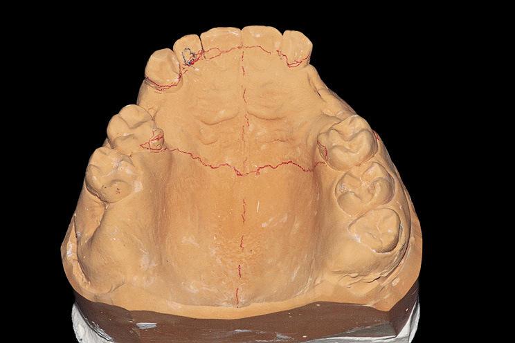 Рис. 1. Производим разметку модели и наносим рисунок контура будущего протеза при помощи водорастворимого карандаша.