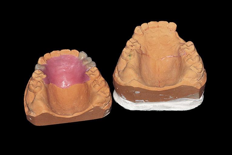 Рис. 13. Окончательная моделировка на второй модели, предназначенной для отливки протеза.