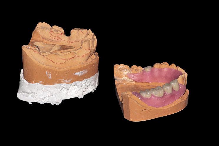 Рис. 14. Окончательная моделировка на второй модели, предназначенной для отливки протеза.