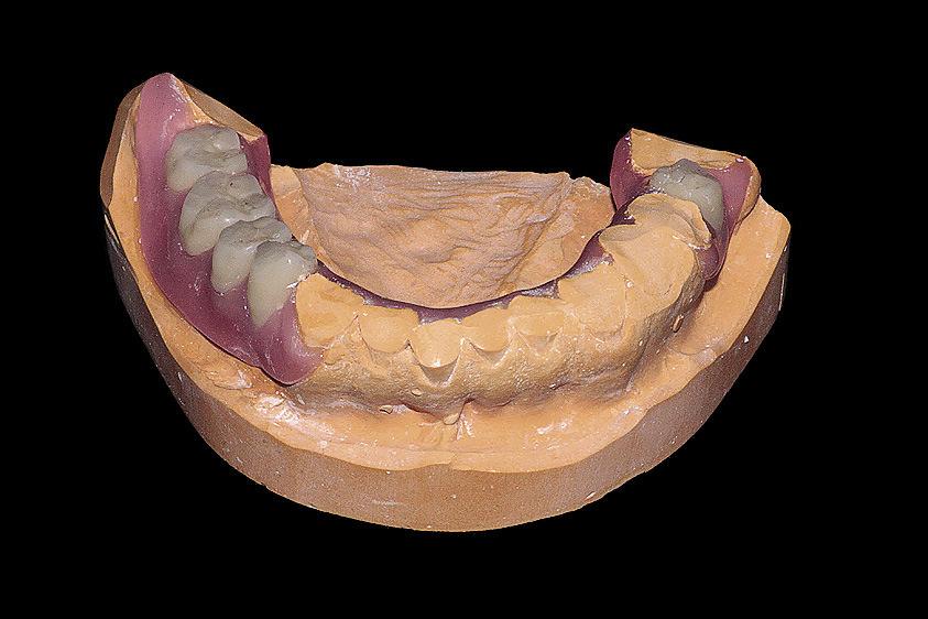 Рис. 17. Перед гипсовкой модели в кювету для литья спиливаем гипсовые зубы.