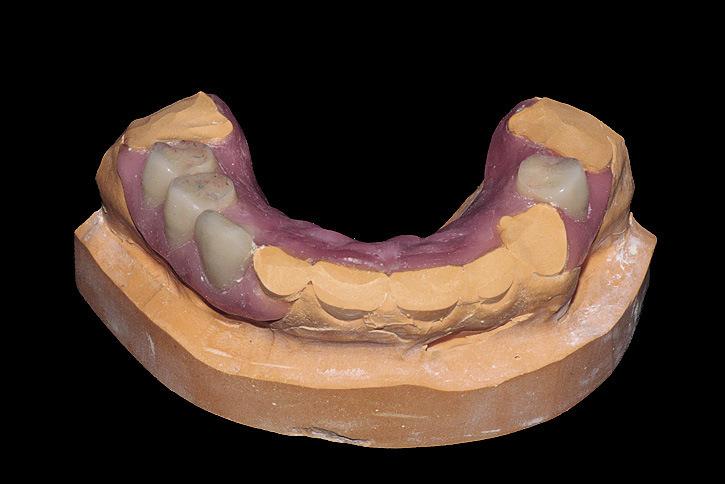 Рис. 18. Перед гипсовкой модели в кювету для литья спиливаем гипсовые зубы.