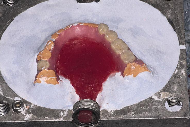 Рис. 22. Для сохранения равномерного окрашивания протеза желательно использовать широкий плоский литник.