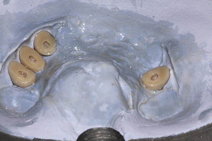 Рис. 30. В зубах необходимо сделать диотарические отверстия для фиксации в протезе.