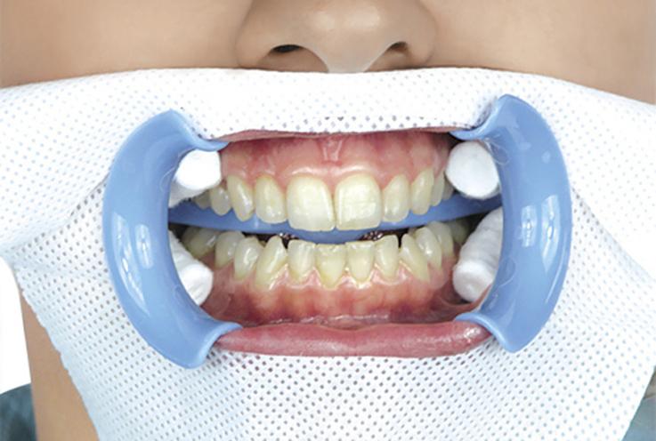 2. Защитите тканевой салфеткой область лица вокруг внешней стороны щечного ретрактора. Определите существующий оттенок эмали зубов. Наденьте на пациента защитные очки. Почистите зубы полировочной пастой, содержащей частички пемзы или полировочного песка. Проложите ватные валики с обеих сторон от щечных тяжей. Дополнительно нанесите защитное средство на внутренние поверхности верхней и нижней губ.