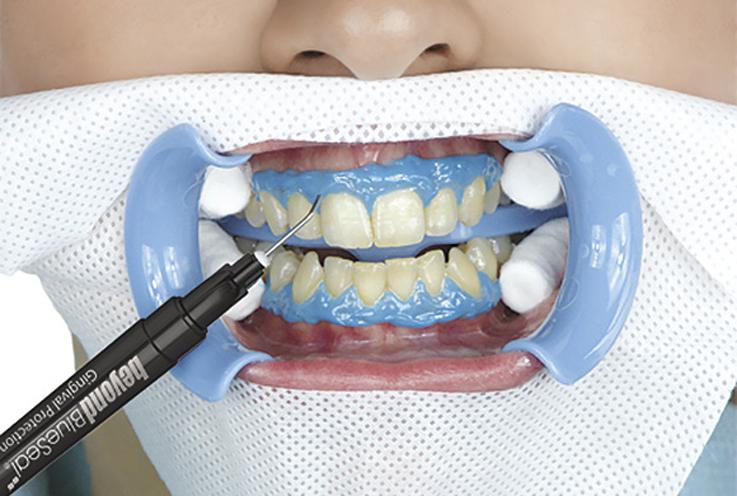 3. Подсушите зубы и десны. Влага может препятствовать полной изоляции десен. Нанесите защитный светоотверждаемый жидкий коффердам на десны. Коффердам должен запечатывать десневые карманы и перекрывать десневую бороздку. Любые клиновидные дефекты или сколы эмали также должны быть изолированы жидким коффердамом во избежание послеоперационной чувствительности на этих участках.