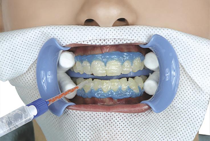 5. Наденьте смешивающий наконечник на двухцилиндровый шприц с отбеливающим гелем и нанесите слой геля BEYOND™ II Advanced Formula Whitening Gel толщиной 2—3 мм на сухую поверхность зубов. Не допускайте попадания отбеливающего геля на десны и в полость рта пациента. Если отбеливающий гель попадет на десны пациента в течение процедуры, розовый цвет десен может временно измениться на белый. Это не должно стать причиной для беспокойства, поскольку к деснам вернется их естественный цвет в течение нескольких часов после завершения процедуры.