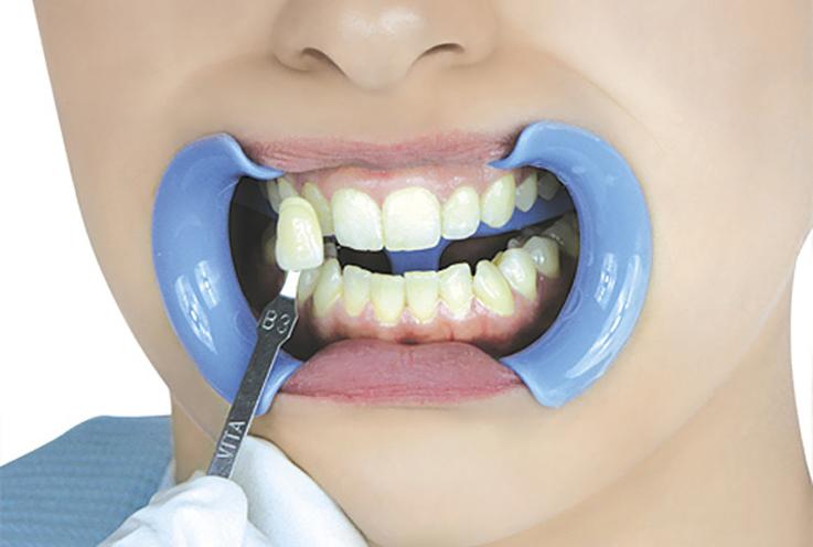 7. После завершающего цикла полностью удалите отбеливающий гель слюноотсосом, удалите жидкий коффердам и начисто протрите зубы ватными валиками или марлевыми тампонами. Нанесите на зубы гелеобразный фторид натрия и оставьте на одну минуту. В конце процедуры с помощью слюноотсоса удалите фтористый гель, уберите защитную ткань, щечные ретракторы, ватные валики, попросите пациента тщательно прополоскать рот. Вода для полоскания должна быть теплой. Продемонстрируйте пациенту новый оттенок зубов.