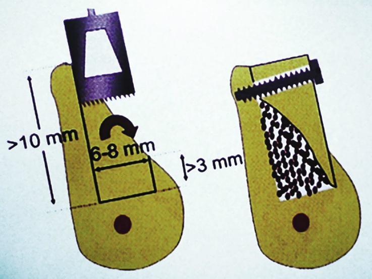 Рис. 9. Методика реверсивных блоков.