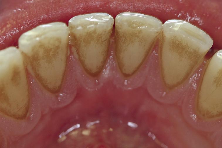 Рис. 2. Зубные отложения, для снятия которых требуется очистка и полировка.