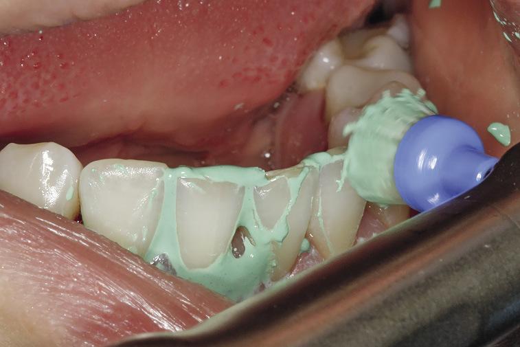 Рис. 3. Применение профилактической пасты Cleanic® (вкус — зеленое яблоко без ментола) совместно с щеткой Pro-Brush®.