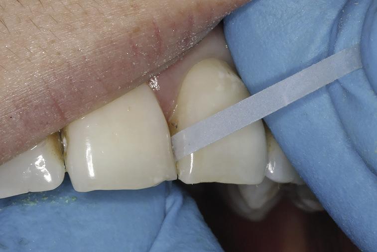 Рис. 5. Очистка и полирование контактных поверхностей зубов с помощью тонкой и сверхтонкой штрипсы.