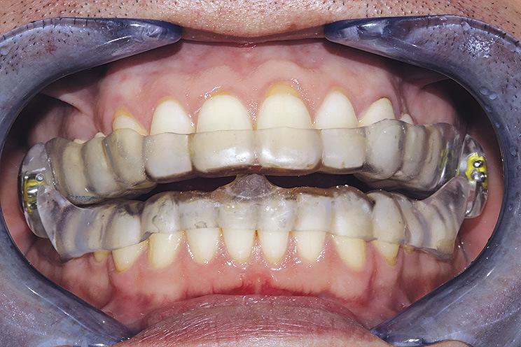 Рис. 3. Позиционер в переднем отделе ВРА с целью расслабления жевательных мышц во время ночного сжатия челюстей при бруксизме.