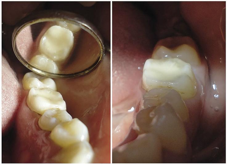 Рис. 2. Окончательный вид реставрации зуба 3.6.