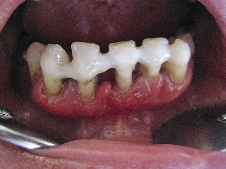 Рис. 2. Шинирование зубов перед хирургическим лечением.