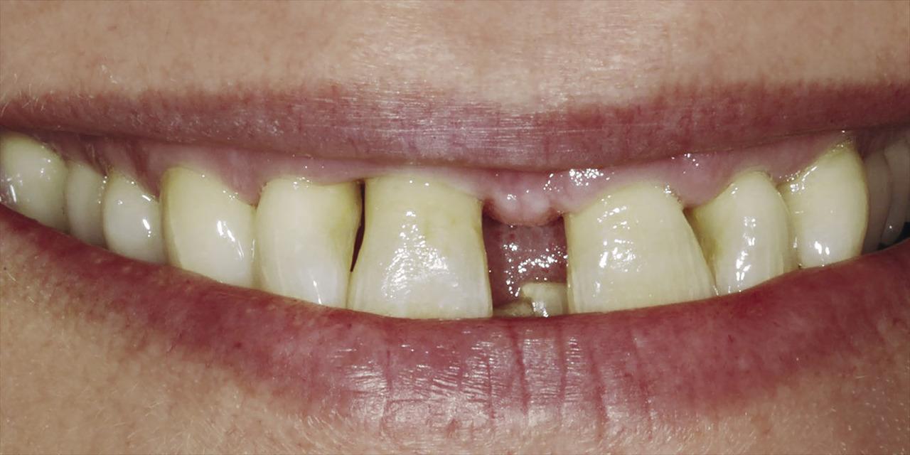 Рис. 1а. Рецессия, обнаруженная на вестибулярной стороне зубов 11 и 12.