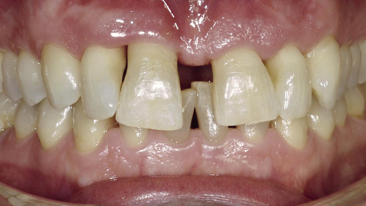 Рис. 1б. Рецессия, обнаруженная на вестибулярной стороне зубов 11 и 12.