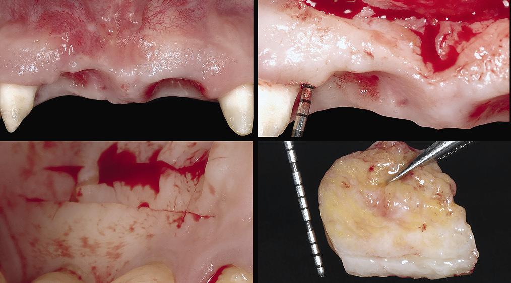 Рис. 4 а — г. После второго этапа хирургии был увеличен объем ткани в области правого центрального резца и сосочка между ним и боковым резцом.