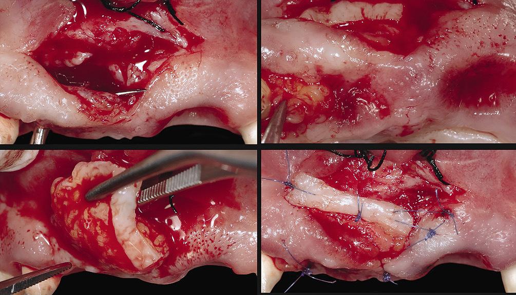Рис. 5 а — г. Соединительнотканный трансплантат был установлен с использованием туннельного подхода после проведения френектомии.