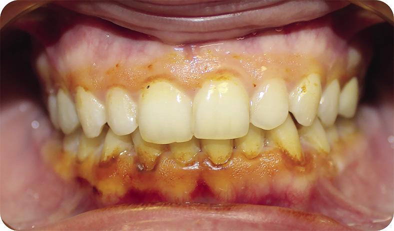 Рис. 2. Пациентка А., через 1 месяц после лечения. Проба Шиллера — Писарева слабоположительная.