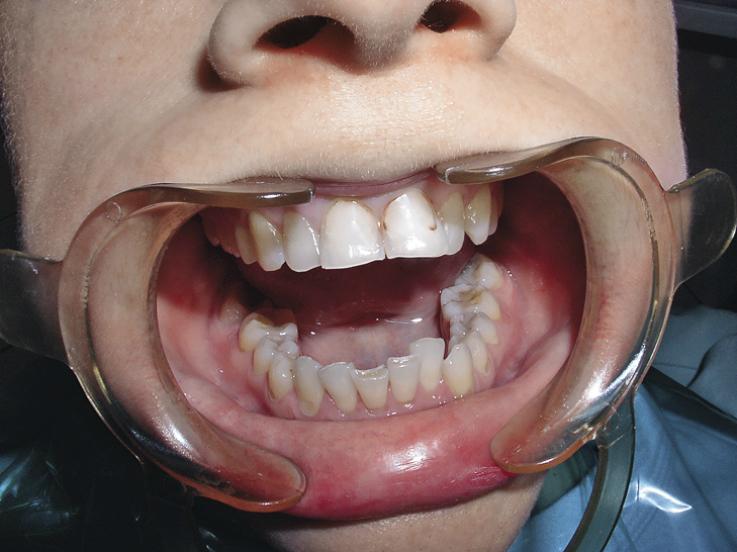 Рис. 5. Пациентка Р., 46 лет, эрозии твердых тканей зубов.