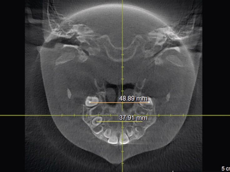 Рис. 1. Методика определения трансверсальных размеров верхней челюсти (ширины между молярами и премолярами в точках Пона).