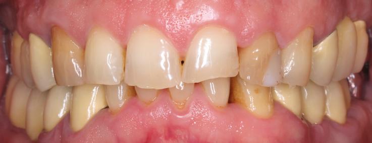 Рис. 1. Фронтальное фото зубов на первом консультативном визите.