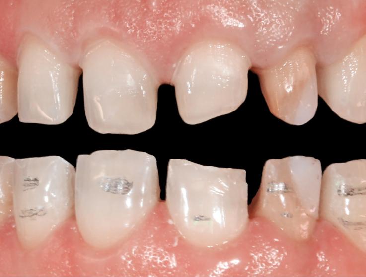 Рис. 16. Контроль минимальной инвазивности. Препарированные поверхности фронтальной группы зубов.