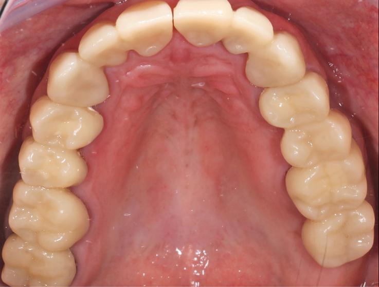 Рис. 22. Фиксированные провизорные реставрации нижней челюсти.