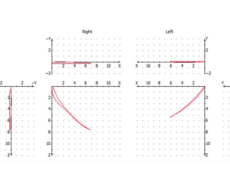 Рис. 4а. График регистрации протрузионного движения нижней челюсти.