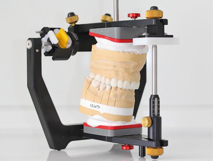 Рис. 4б. Гипсовые рабочие модели в артикуляторе, загипсованные с помощью анатомической лицевой дуги по индивидуальной оси вращения.