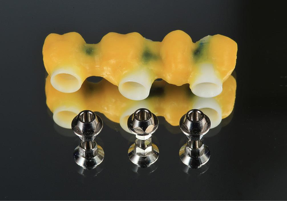 Рис. 8. Моделирование будущей формы каркаса на пластиковом компоненте.