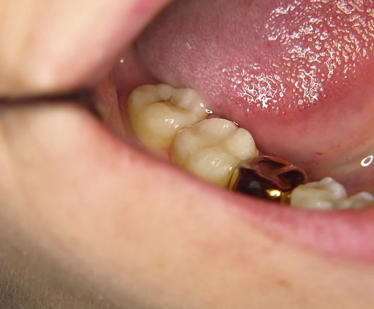 Рис. 8. Вид зуба 4.7 после реставрации.