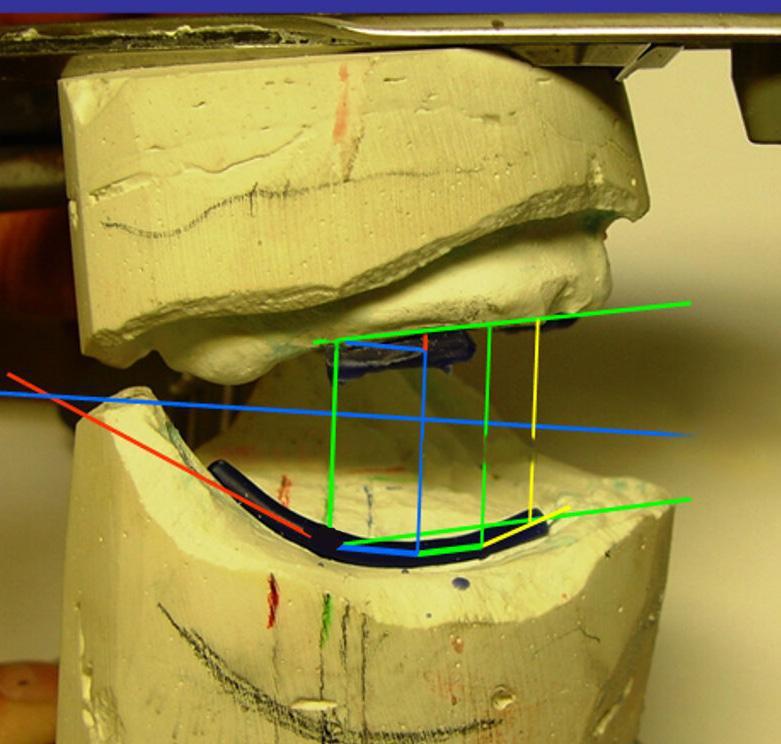 Рис. 8. При более точном учете положения альвеолярных гребней обеих челюстей становится очевидным, что область первого моляра для протеза на верхнюю челюсть является нестабильной (область синего цвета с вопросительным знаком). В соответствии с анализом моделей по Штуку/Лерху возможна была бы даже постановка еще одного зуба в окклюзии позади этой области. Но в итоге стабильность при жевании возможна только в области, отмеченной зеленым и желтым цветом (см. Текст).