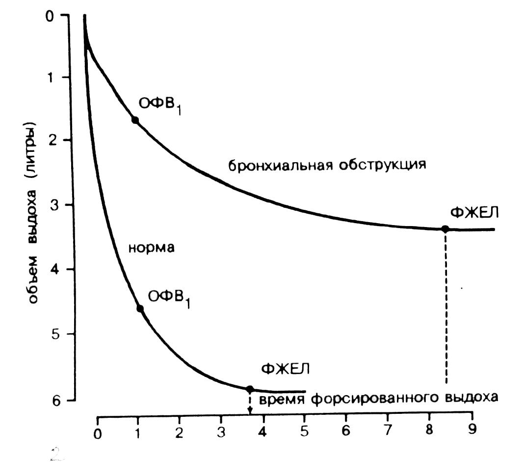 Рис. 1. Типичные спирограммы (кривые объем - время) пациентов с бронхиальной обструкцией и здоровых лиц.
