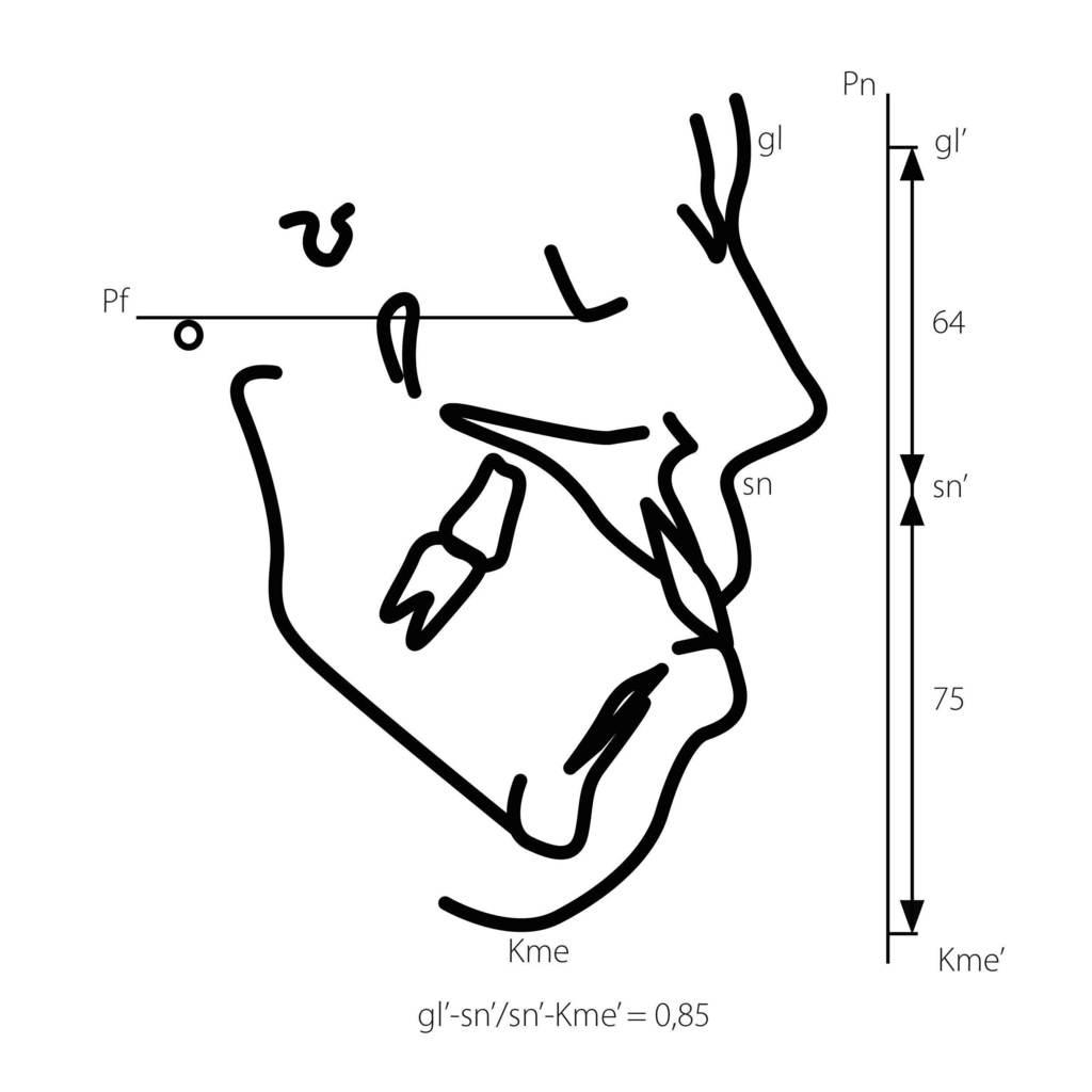 Рис. 15. Степени выраженности нарушений эстетики лица в вертикальном направлении у пациентов с увеличением нижней / уменьшением верхней (а — в) и уменьшением нижней / увеличением верхней (г — е) высоты лица: 1-я степень, 2-я степень, 3-я степень.