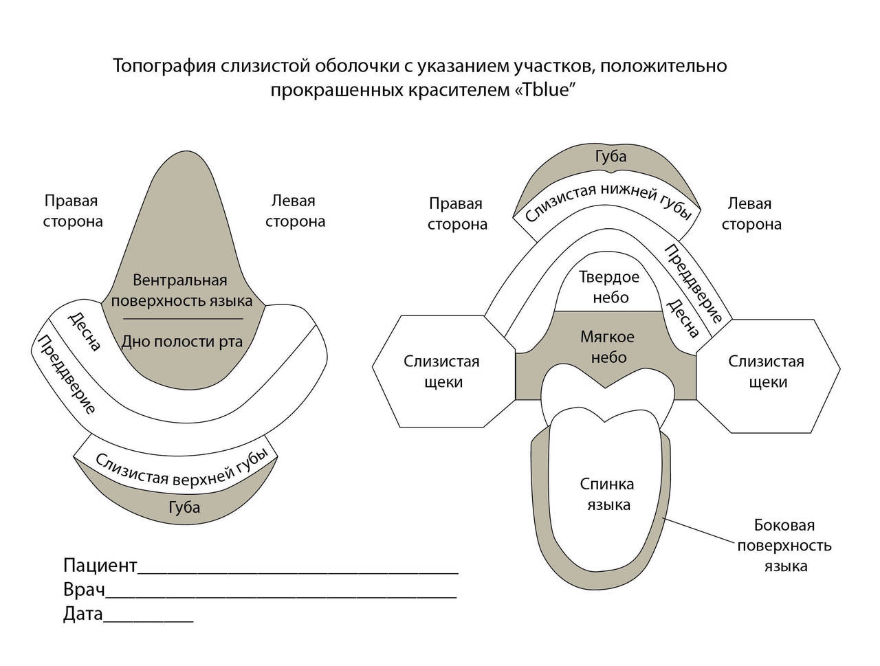 Рис. 11. Топографическая карта полости рта для онкоскрининга.