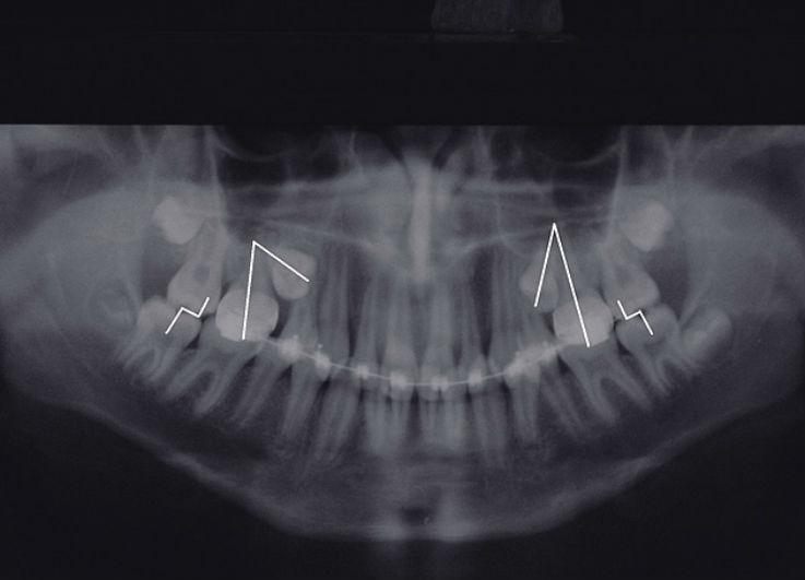 Рис. 1. Ретенция 15 и 25 зубов, мезиальный наклон их продольной оси, отсутствие места в зубном ряду для этих зубов, мезиальное смещение моляров верхней челюсти (окклюзионные контакты в их области по II классу Энгля), недоразвитие зачатка 48 зуба.
