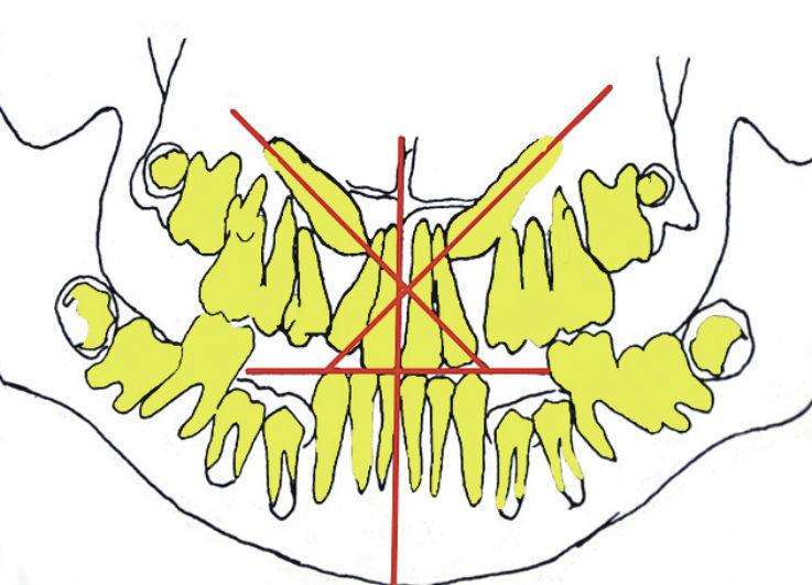 Рис. 4а. Контуры, скопированные с ортопантомограмм челюстей, полученных в динамике: 10 лет 4 месяца — ранняя потеря 53, 63, 74, 75, 84, 85 зубов; мезиальное смещение премоляров и моляров верхней челюсти; отсутствие места в зубном ряду для 13 и 23 зубов; ретенция и мезиальный наклон продольной оси 13 и 23 зубов; мезиальный наклон продольной оси 36 , 46 зубов; места для премоляров нижней челюсти недостаточно.